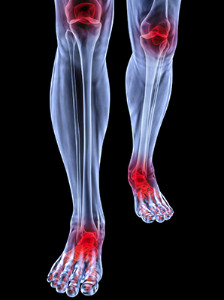 The Development Of Rheumatoid Arthritis In The Feet