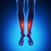 Causes and Symptoms of Achilles Tendon Injuries