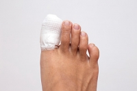 Two Types of Toe Fractures