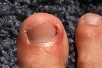 Causes of Ingrown Toenails