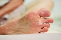 Why Do Plantar Warts Grow Inward?